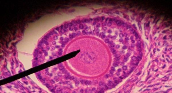 vescica-germinale